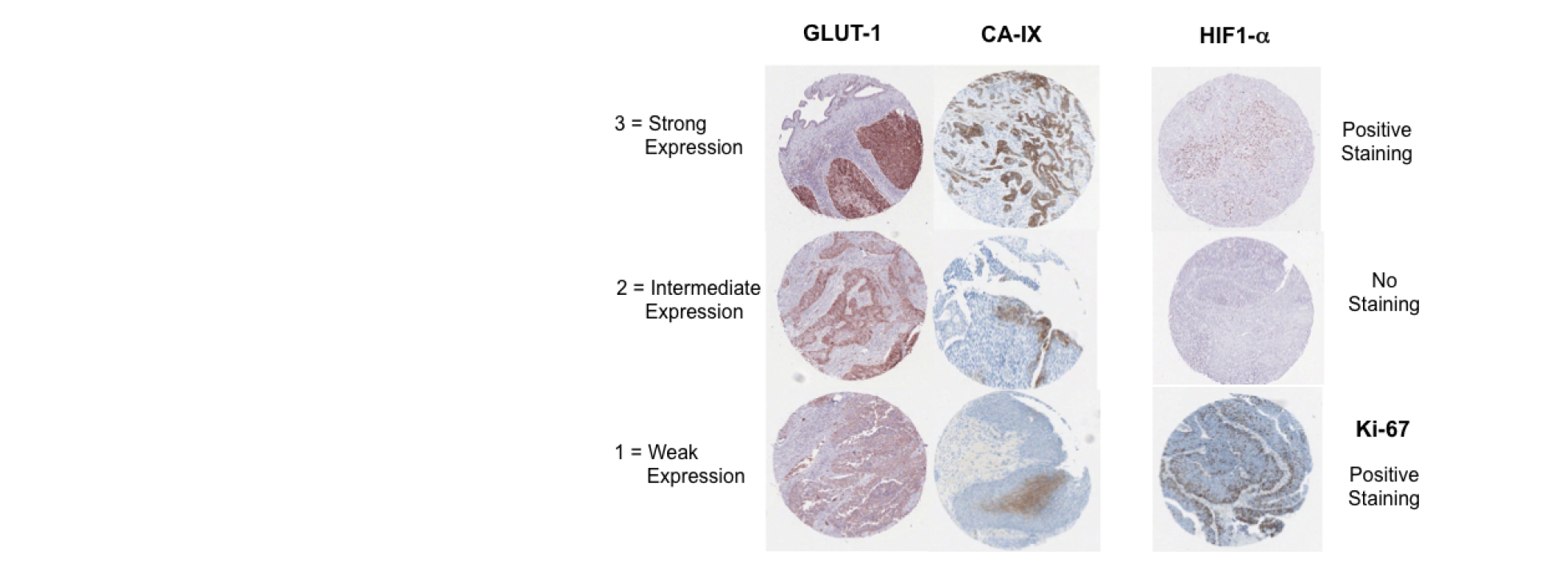 Expression status of hypoxia related markers in bladder cancer tissue.